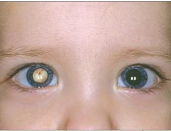 Proyecto para combatir la ceguera infantil puede perder estado parlamentario
