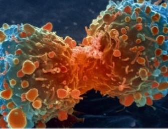 """La mayoría de los cánceres son el resultado de la """"mala suerte"""""""
