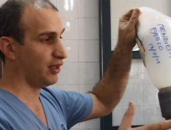 Producción de prótesis: la posibilidad de vivir mejor