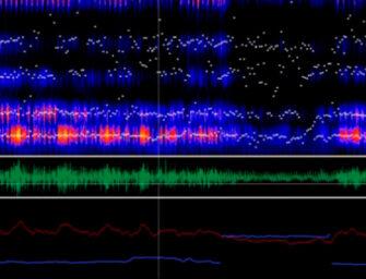 Analizan la voz de pacientes con Parkinson para su seguimiento