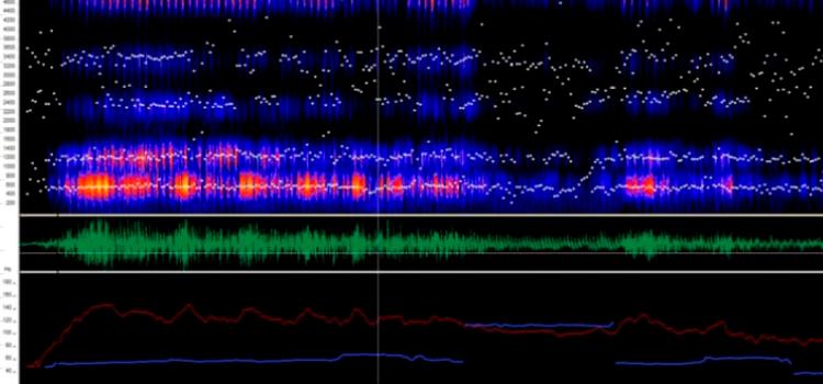 Grafico de analizador de espectro